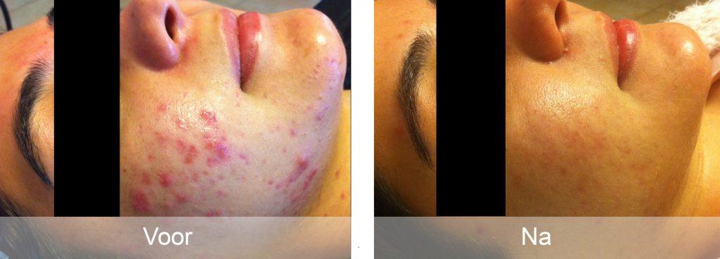 acne-resultaat24