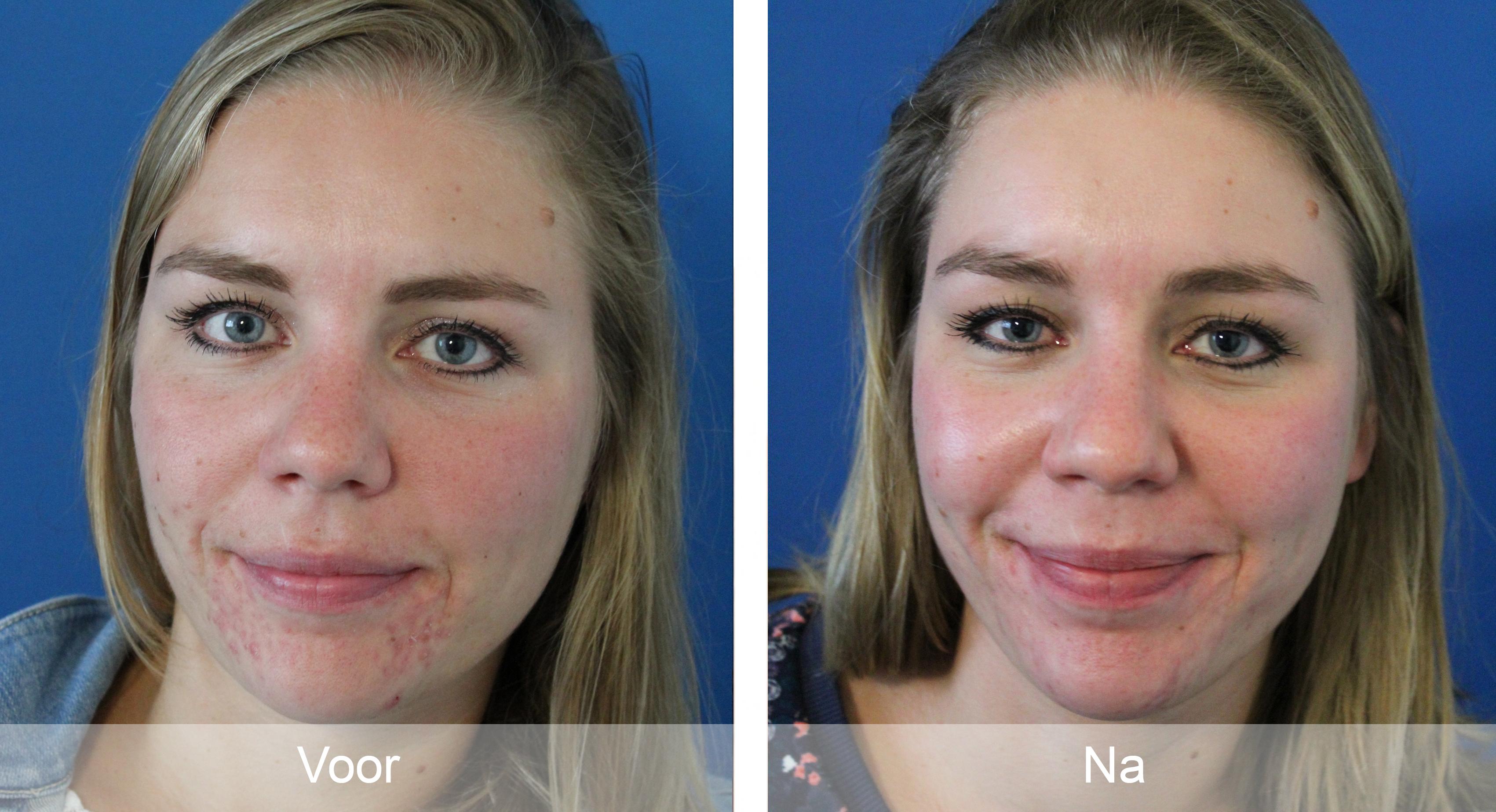 acne-22