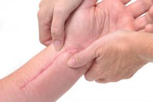 11.littekens (2)