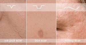 scar-types