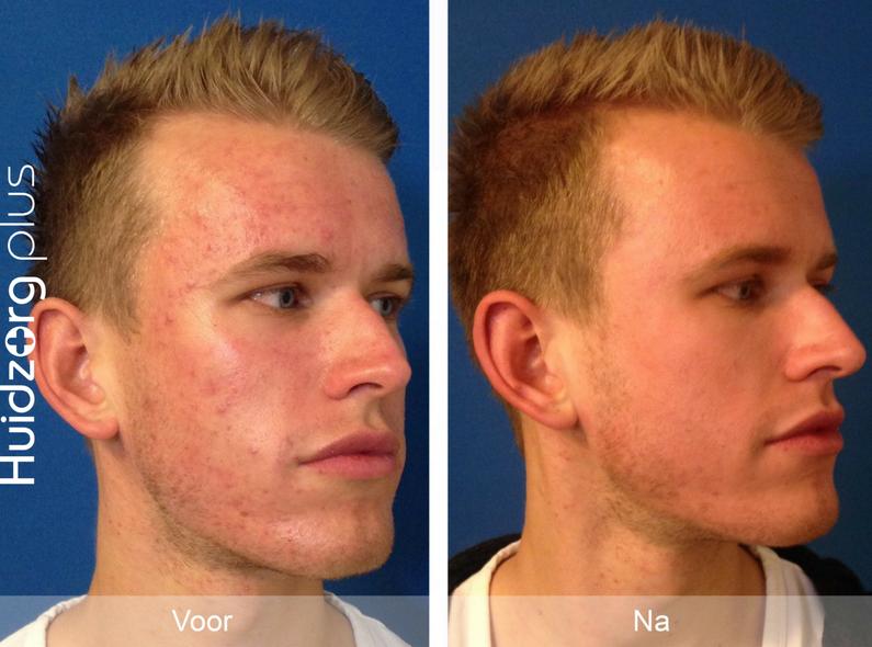 acne-man-2