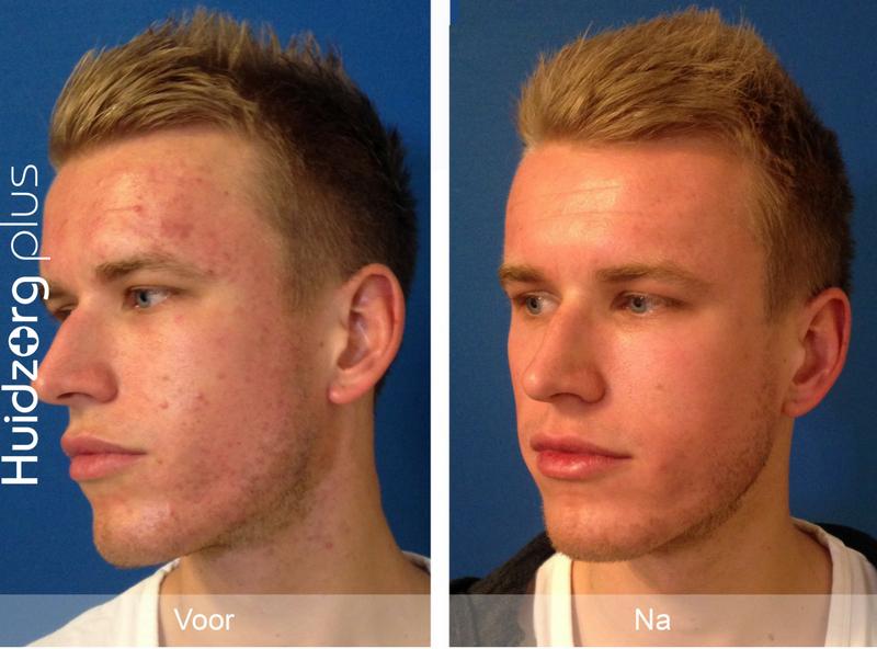 acne-man-3